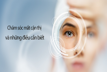 Chăm sóc mắt cận thị và những điều cần biết
